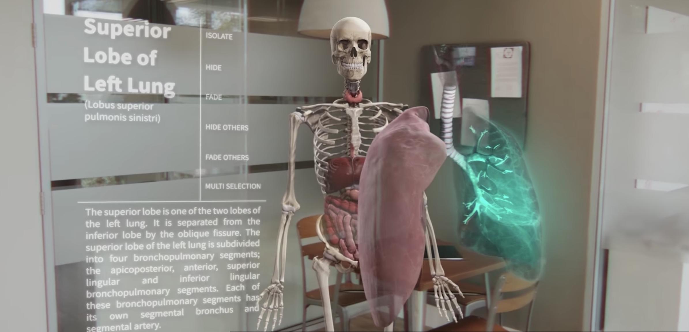 Lung - 3D4Medical 2