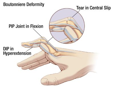 Illustration of Boutonniere Deformity finger condition