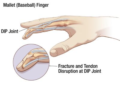 Mallet Finger Illustration | 3-Point Products