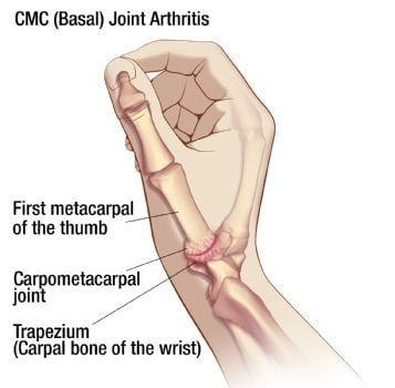 Illustration of CMC - Basal - Joint Arthritis | 3-Point Products