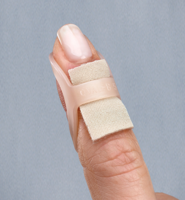 Using an Oval-8, cushioned with Gel Mate, to treat a mallet finger