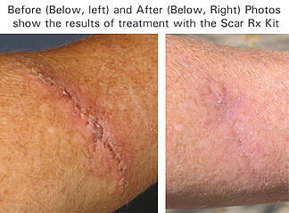 Scar Rx: before and after treatment