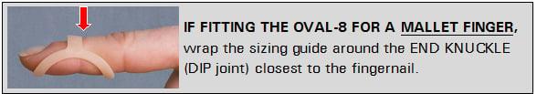 Oval-8 for mallet finger treatment