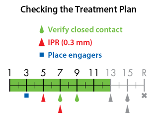 Checking the treatment plan.png