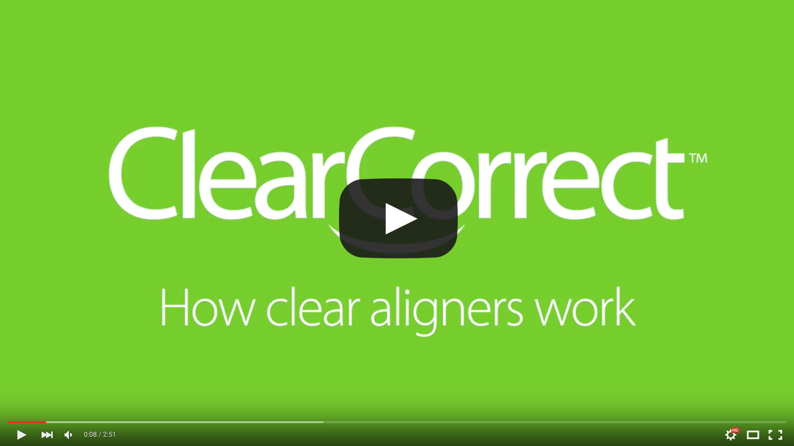 How_Clear_Aligners_Work