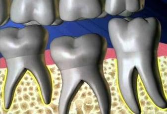 ankylosed tooth.jpg