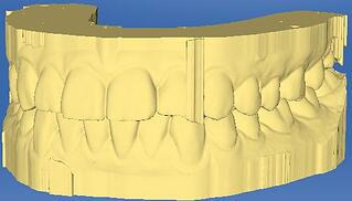 excess material CEREC.jpg