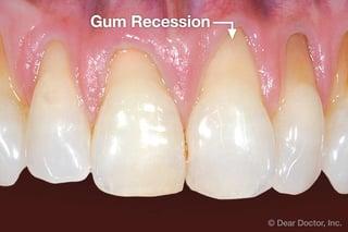 gum-recession.jpg
