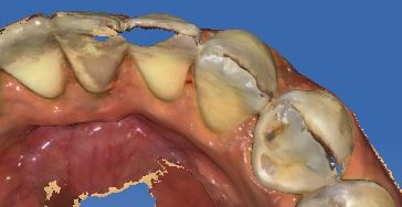 holes CEREC.jpg