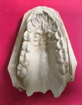 stone model