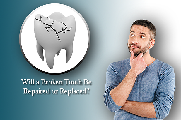Is it best to Fix or Replace a Damaged Tooth?