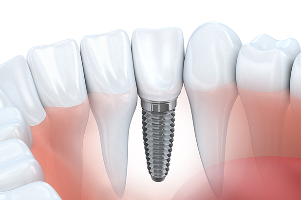 Take Care of Your Dental Implants