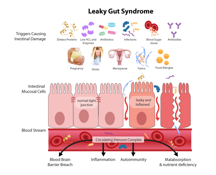 What is leaky gut in babies