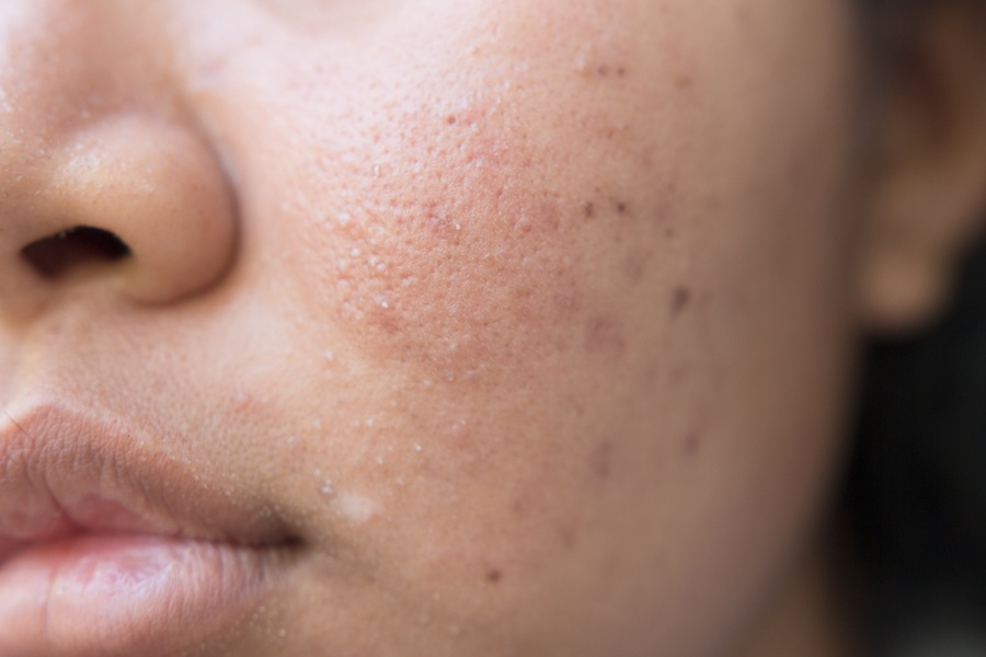 bigstock-Girl-with-problematic-skin-and-110409698.jpg