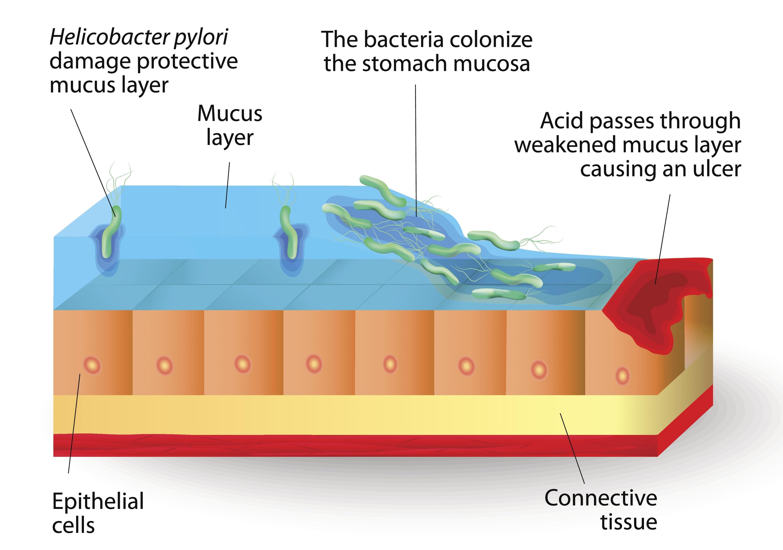 h pylori infection-849635-edited