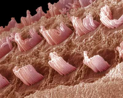 hair cells within the inner ear