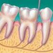 Gum_Disease_3.jpg