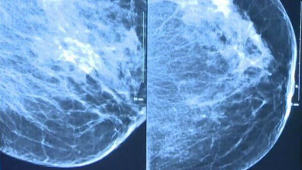 How Does the Radiologist Read My Mammogram?
