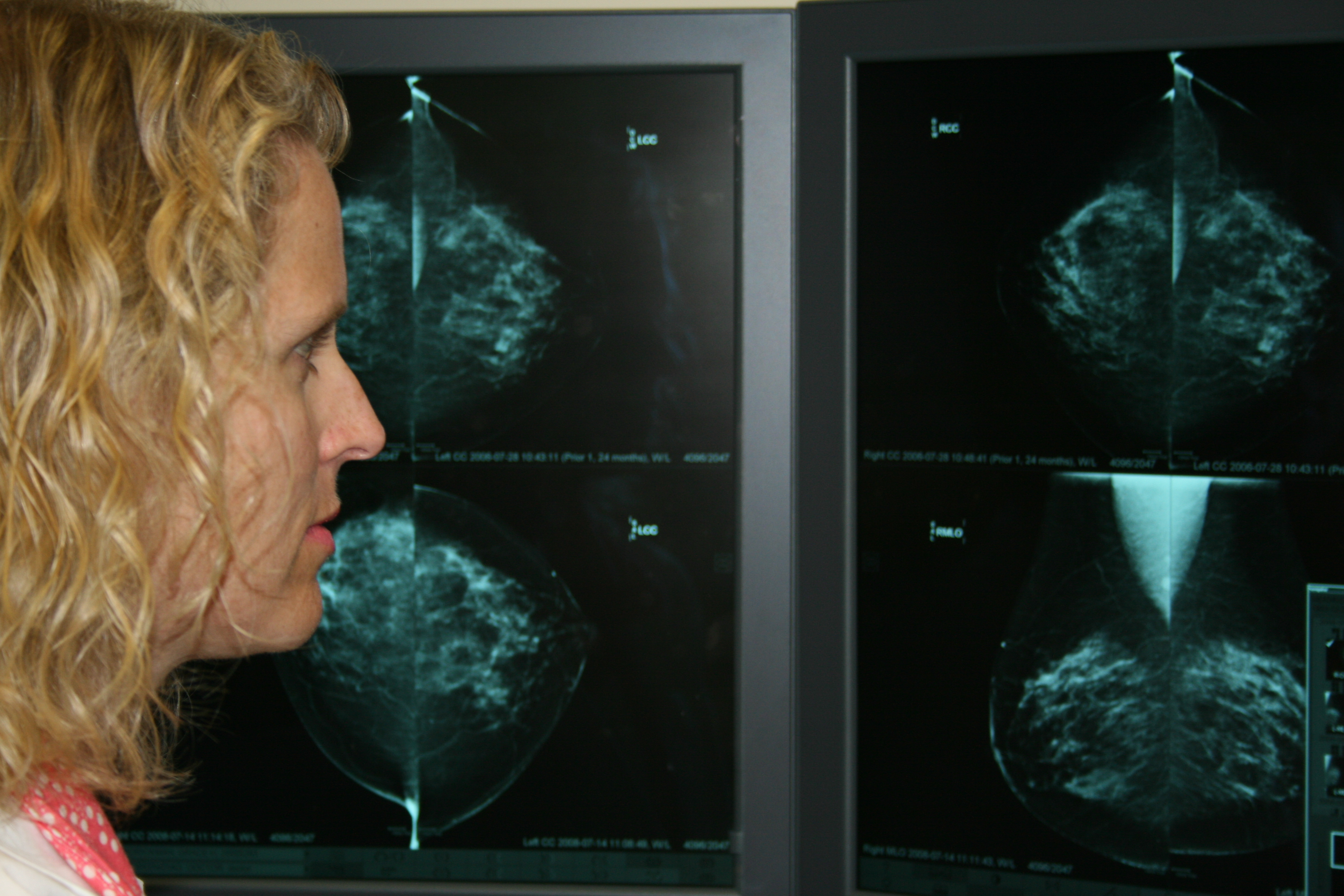 reading mammograms