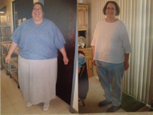 Barbara Success Story - Step Ahead Wellness