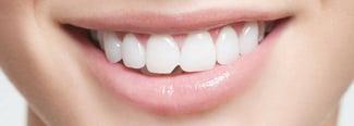 Lesiones dentales comunes y su tratamiento