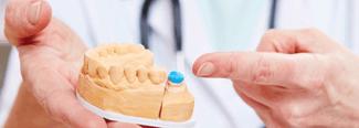 5 tipos de coronas dentales que existen