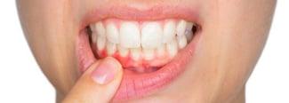 Gingivitis y periodontitis: cómo diferenciarlas y tratarlas