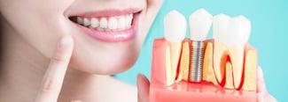 ¿Cómo se pone un implante dental?