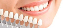 Problemas y riesgos de las carillas dentales mal colocadas