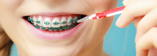 Consejos para tu tratamiento de ortodoncia en cuarentena