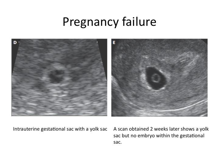 Early Pregnancy ultrasound: Abnormal pregnancy