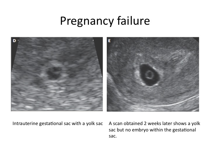 fetal ultrasound dating ♥♥♥ link:   video a look at what your ultrasounds will involve.