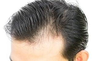 us-light-cure-baldness-blog-403gd44228 (002)