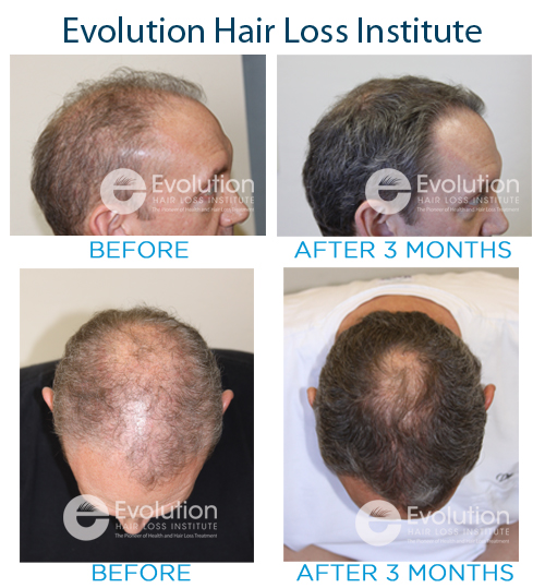 Brown Hair Loss Treatment Before and After Photo