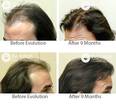 Hair Loss Treatment Results Laser Hair Therapy