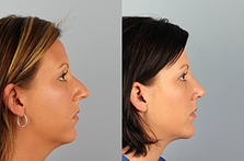 what you need to know about rhinoplasty