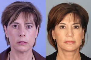 Filler-and-Botox-10-bef-aft-300x199