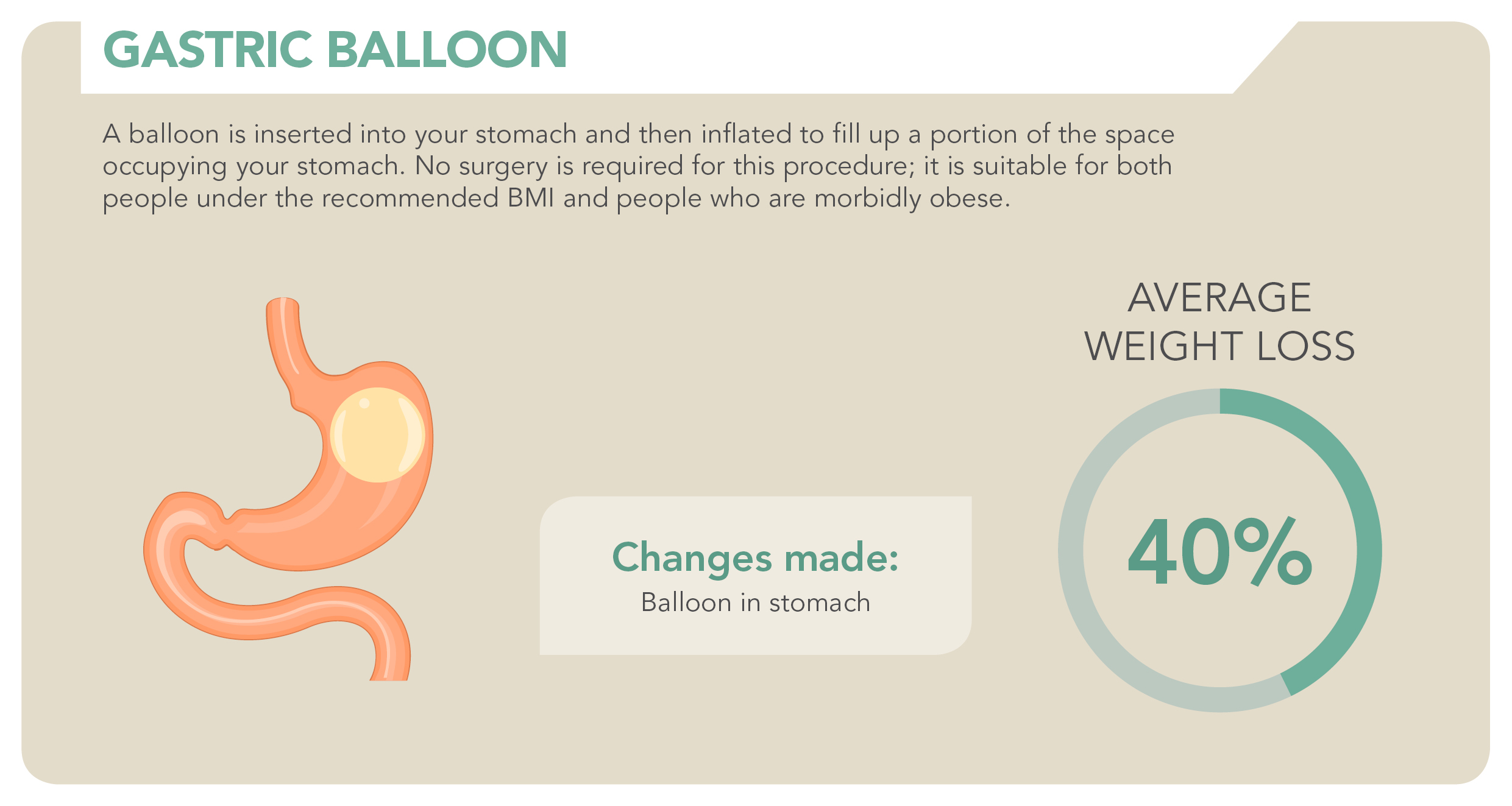 Bariatric Procedure_Gastric Balloon