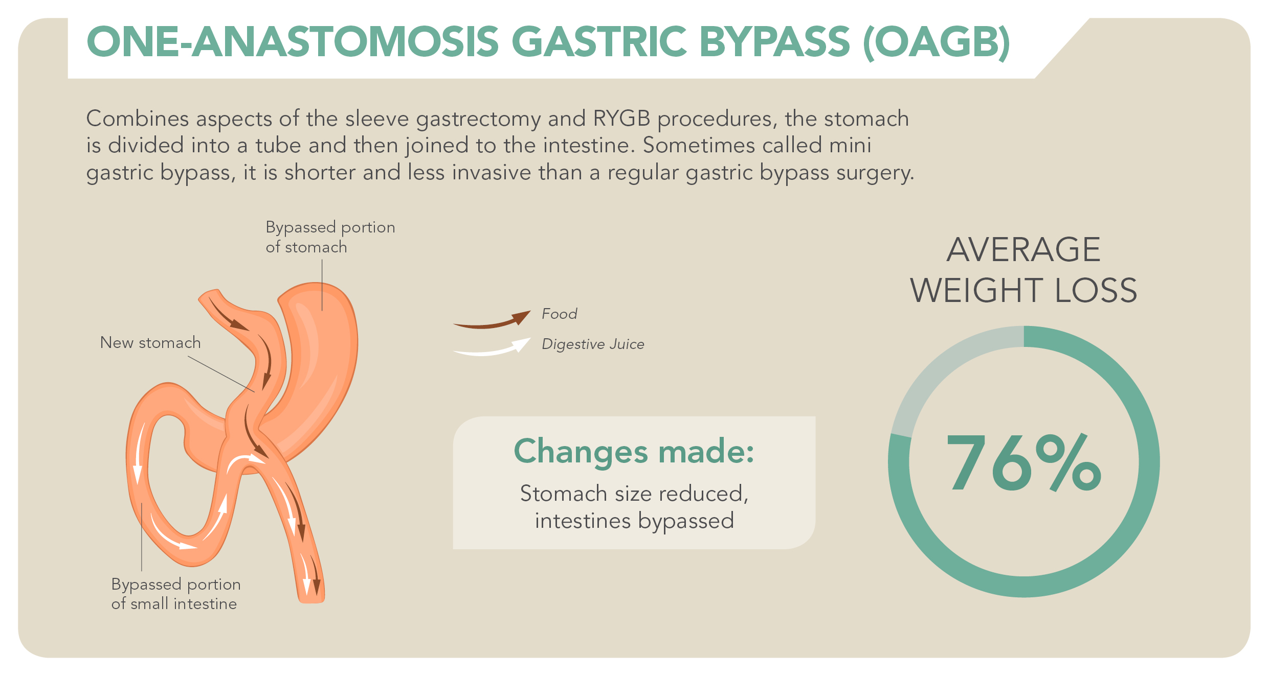 Bariatric Surgery_OAGB