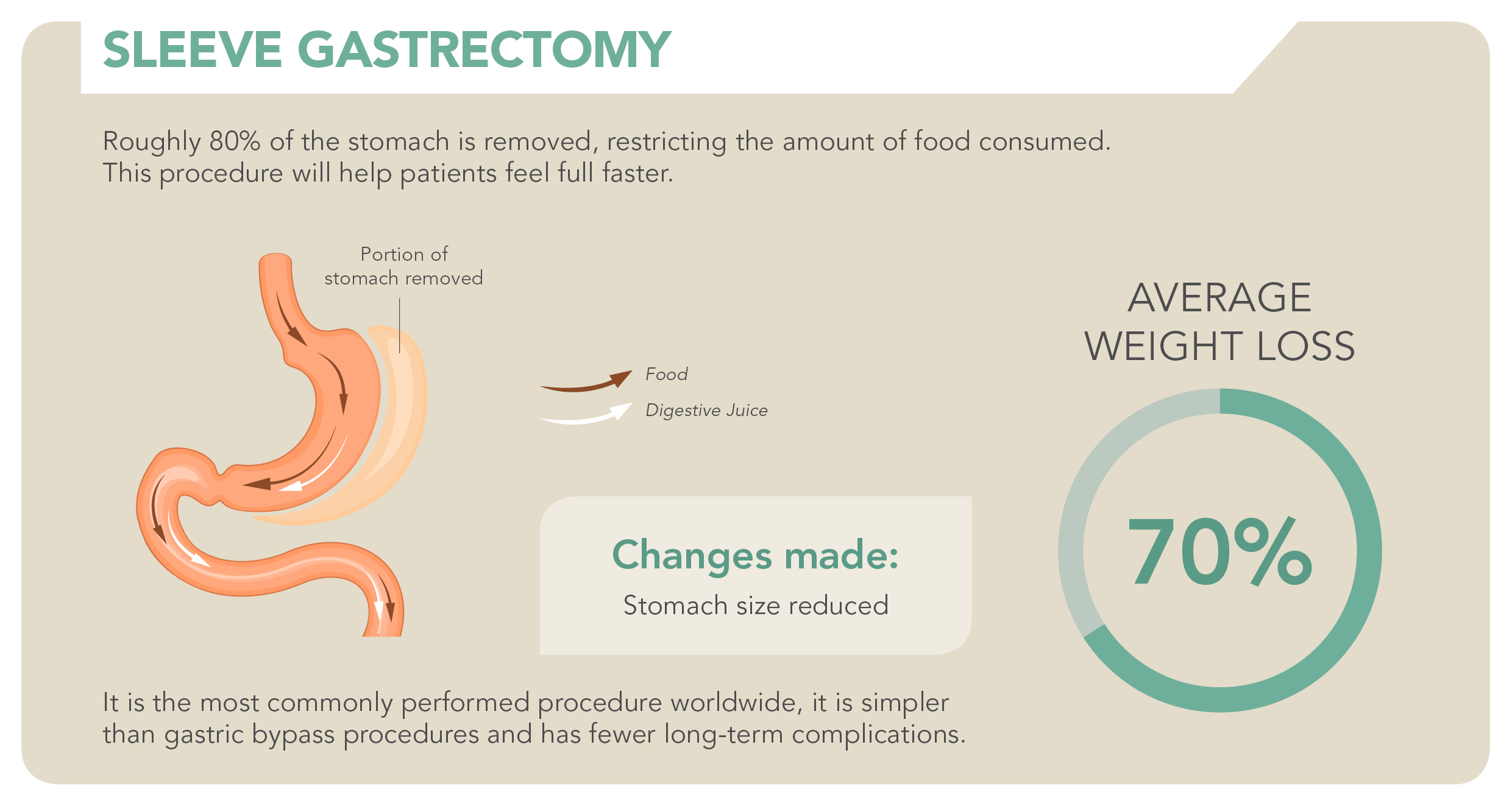 Bariatric Surgery_Sleeve Gastrectomy