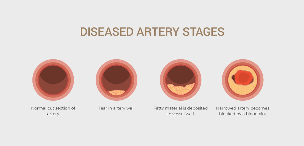 HEART-ATTACK-IN-WOMEN_ARTERY-STAGES-ENGLISH