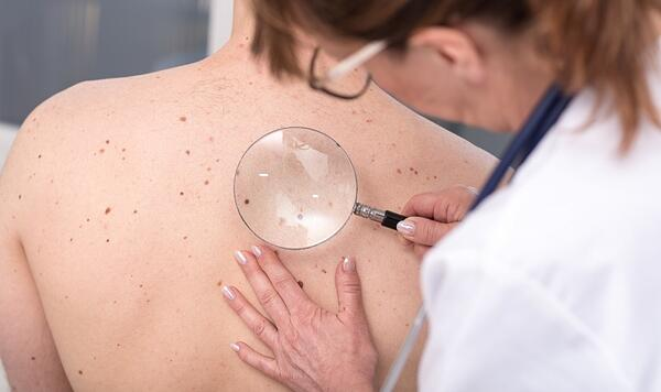 How to Detect Skin Cancer