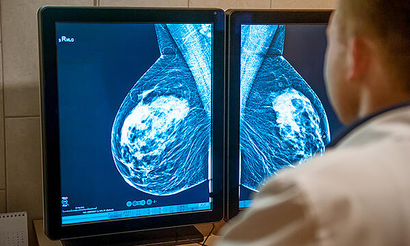 Advances in Breast Cancer Treatment