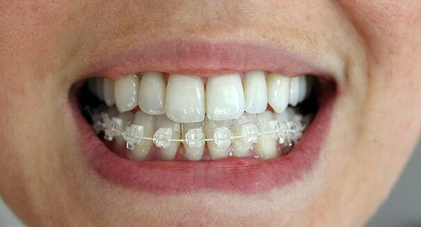 I decide to get Six Month Smile Braces due to it is hardly ...
