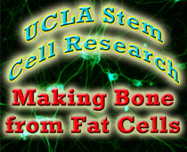 ucla stem cell research