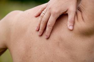 Skin Cancer Detection Guide