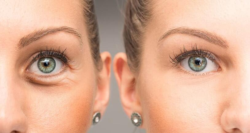 Crows Feet: What Is It and How To Treat It With Botox?