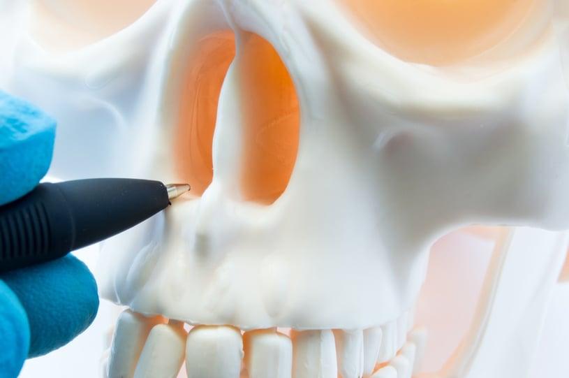 Deviated Septum: Symptoms, Causes, and Rhinoplasty (Nose Job)
