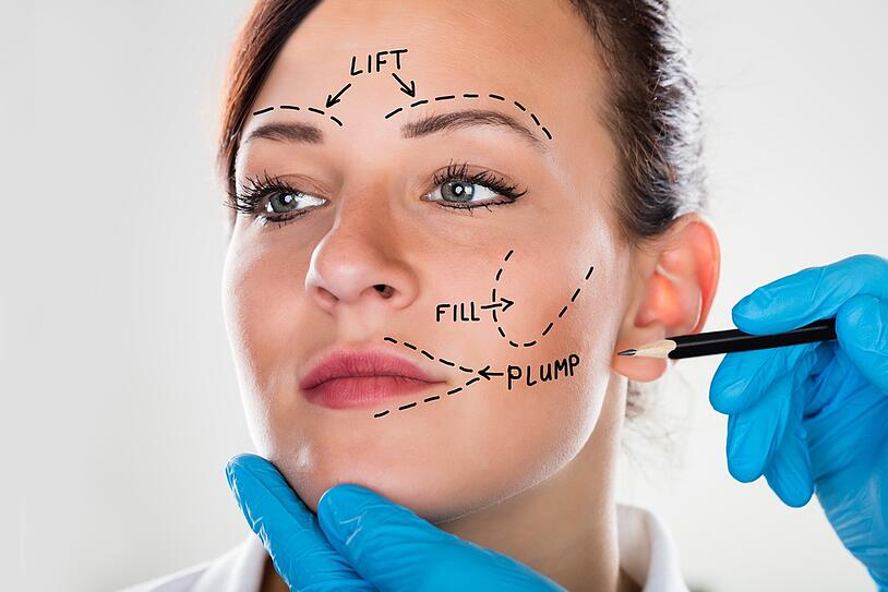 What is a Facelift Procedure? (Benefits, Risks, and Recovery Time)