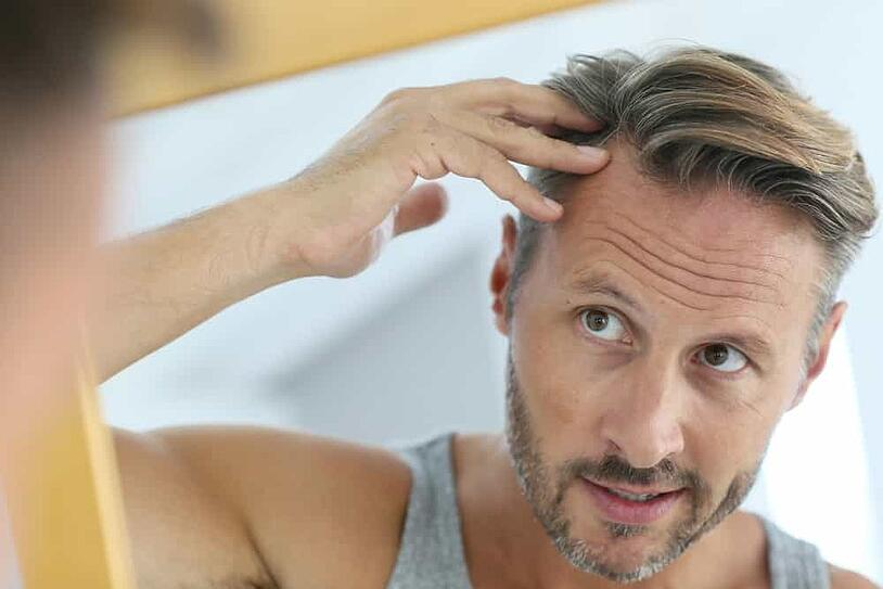 NeoGraft Hair Transplant in Houston: Procedure, Recovery, and Results